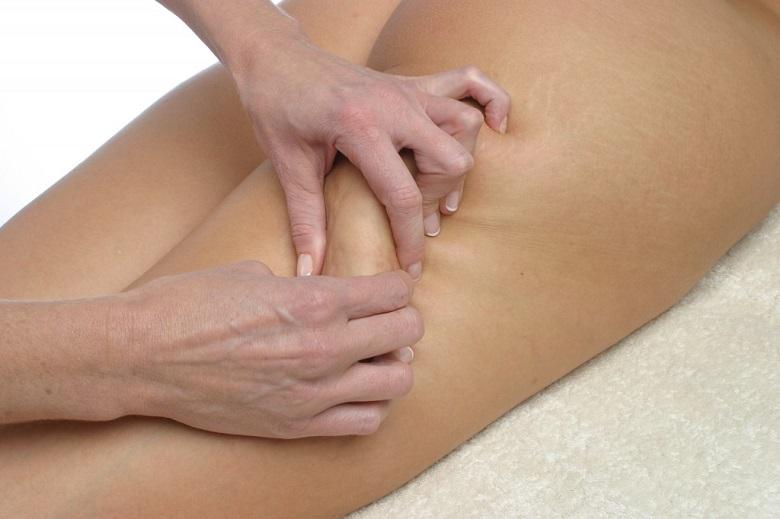 La cellulite, comment s'en débarrasser 3