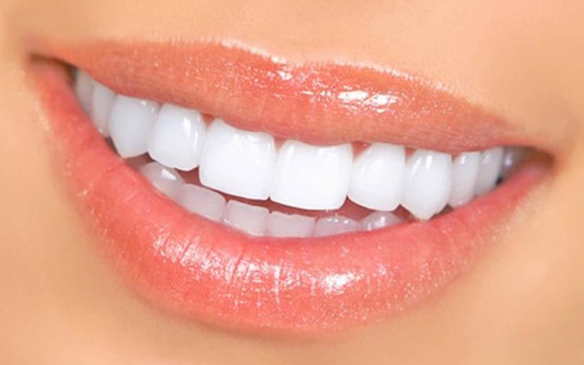 beau-sourire